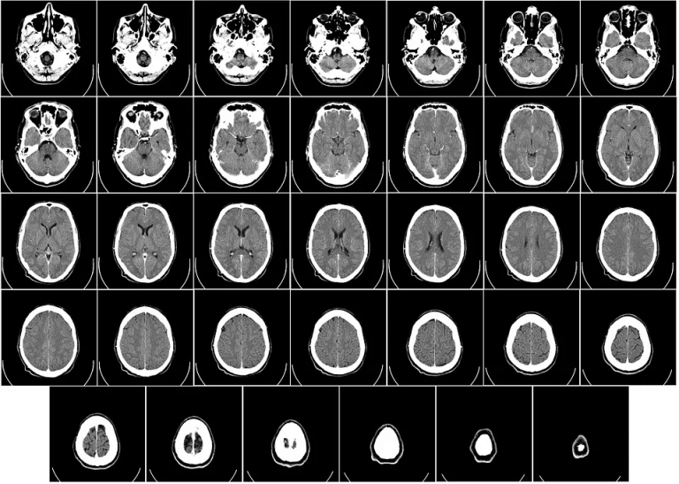 More support for patients diagnosed with a brain tumour